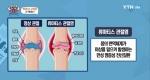몸속내 나쁜 물질이 흐른다? 류마티스 관절염